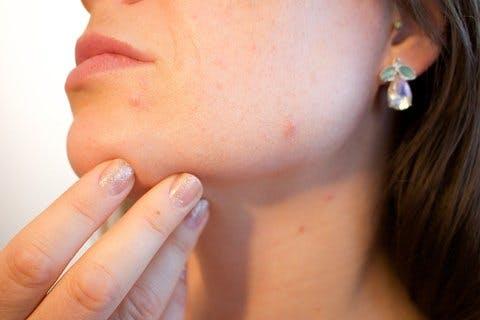 Medium acne 1606765 960 720